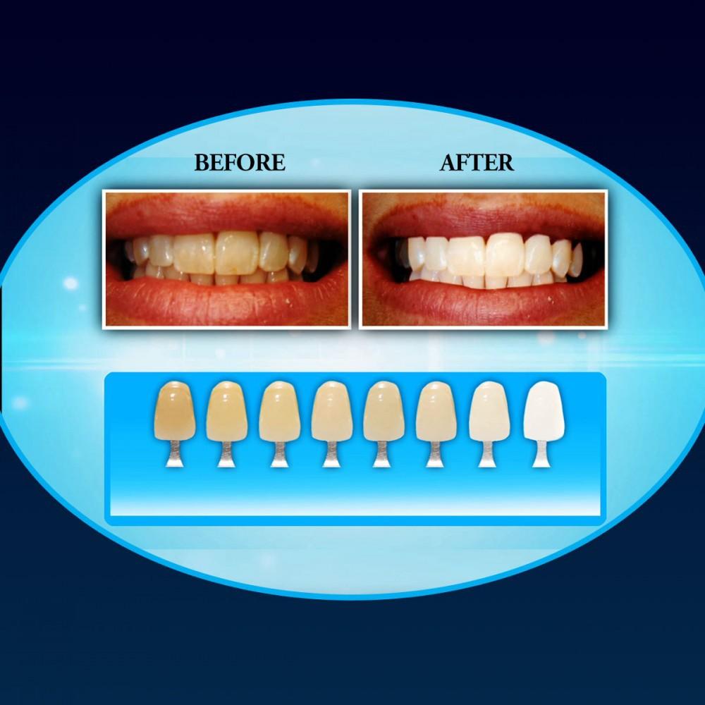 Σύστημα λεύκανσης δοντιών σε 20 λεπτά - As seen on TV 52131